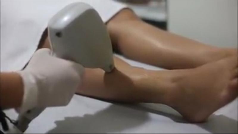 Depilação a Laser Masculina Agendamento ALTO DE SANTANA - Depilação a Laser Virilha