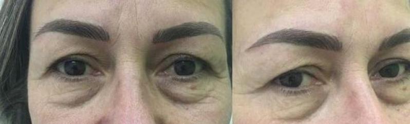 Micropigmentação Sobrancelha Homem Vila Bariri - Micropigmentação Sobrancelha Escura