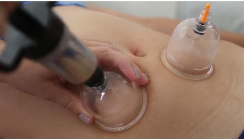 Onde Faz Massagem Redutora Modeladora Jardim Santa Inês - Massagens Redutora de Gordura Localizada