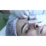 clínica que faz micropigmentação sobrancelha para homens Vila Nelson