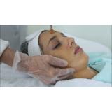 limpeza de pele com extração agendar Vila Santos