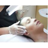 limpeza de pele com peeling de diamante Vila Marisa Mazzei