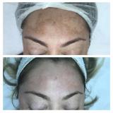 limpeza de pele com peeling Vila Dornas