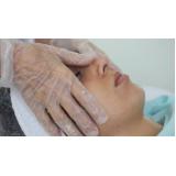 limpeza de pele profunda com extração de cravos