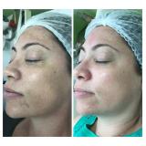 microagulhamento acne
