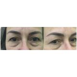 micropigmentações em sobrancelha masculina Vila Marisbela