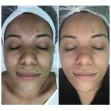 onde fazer microagulhamento para acne Jardim Mário Fonseca