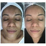 onde fazer peeling do mar morto rose de mer Vila Carolina