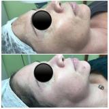 serviço de microagulhamento acne Sítio do Mandaqui