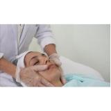 serviço de microagulhamento no rosto ALTO DE SANTANA