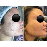 serviço de microagulhamento para cicatriz de acne Santa Terezinha