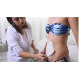 tratamentos estéticos gordura localizada